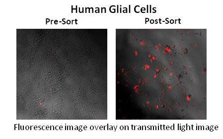 human-glial-cells.jpg