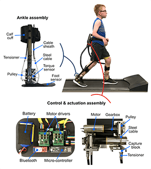 Robotic Exoskeletion Therapy